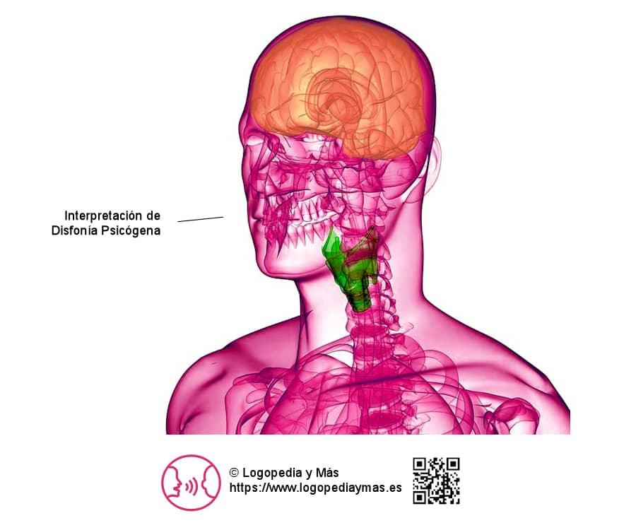 disfonia psicogena