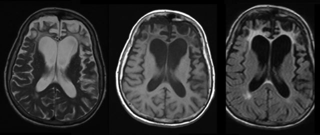 demencia frontotemporal hereditaria