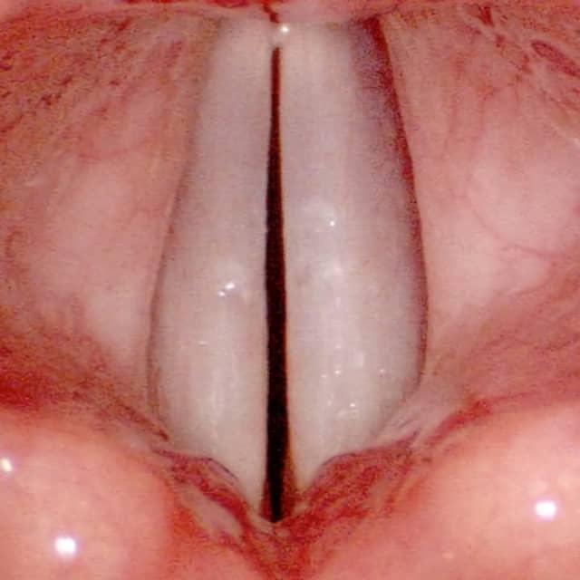 cuerdas vocales y polipos