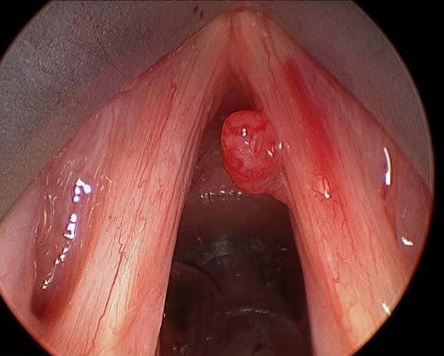 polipos en las cuerdas vocales