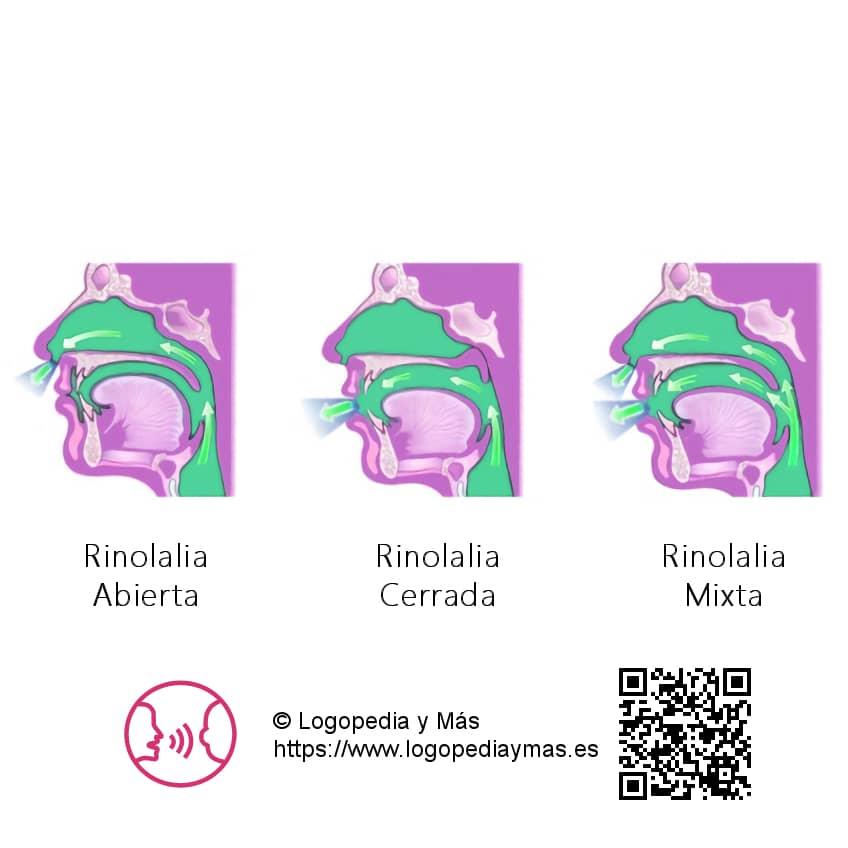 definición rinolalia