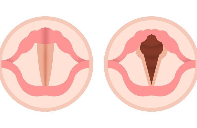 nódulos cuerdas vocales