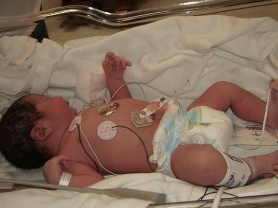 que es la logopedia neonatal