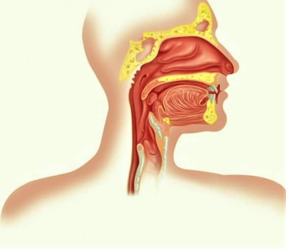 cancer de laringe