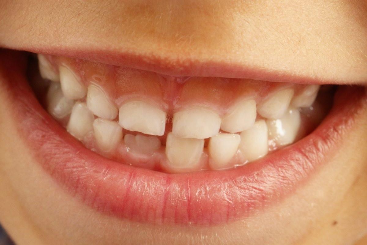problemas dentales satb2