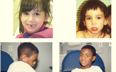 Síndrome asociado al gen SATB2