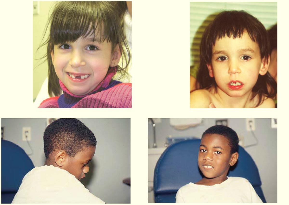 niños con síndrome asociado al gen satb2